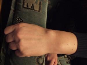 Почему на руках появляются липомы?