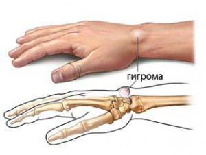 О чем свидетельствуют многочисленные жировики на руках?