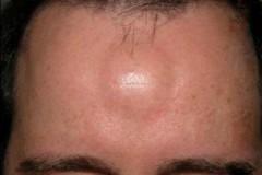 Как избавиться от липомы на голове без хирургического стола?