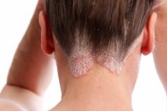 Излечим ли псориаз кожи головы, и стоит ли его бояться?