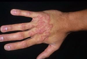 Причины возникновения и степень поражения грибком рук и ногтей