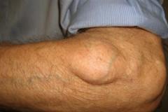 Причины появления и методы лечения липом на руках