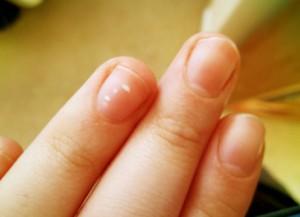 Причины развития ногтевого грибка у беременных