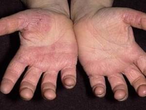 заражения рук грибком