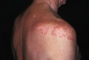 Как происходит заражение кожным грибком?