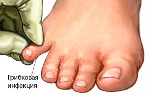 Диагностика грибка ногтя