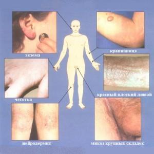 Виды дерматологических болезней