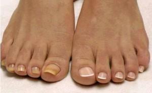 кремов от ногтевого грибка на ногах