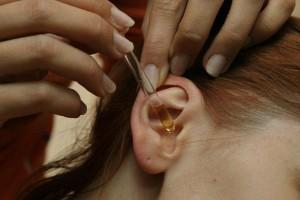 Методы лечения грибка