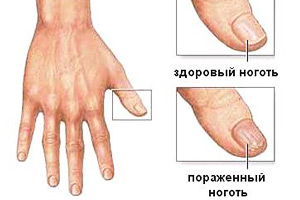 факторы заражения рук грибком