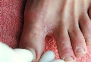Особенности лечения микозов