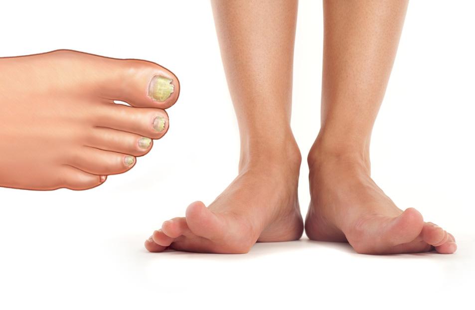 Народные средства против грибка на ногте