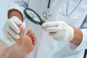 Мази для лечения онихомикоза
