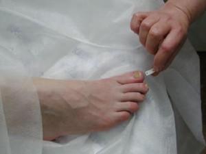 Лечение грибковой эрозии межпальцевых промежутков