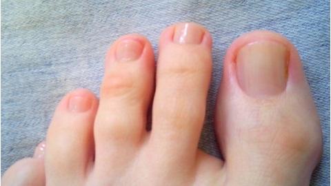 На фото: грибок на ногах