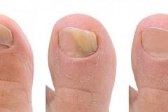 Как использовать Креолин от грибка ногтей