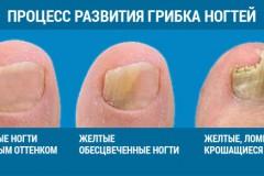 Как выглядит ногтевой грибок на пальцах ног