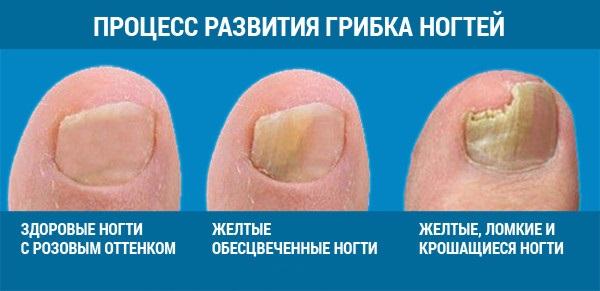 На фото: как выглядит грибок ногтей