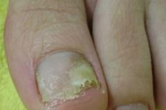 Как применять Ирунин при грибке ногтей