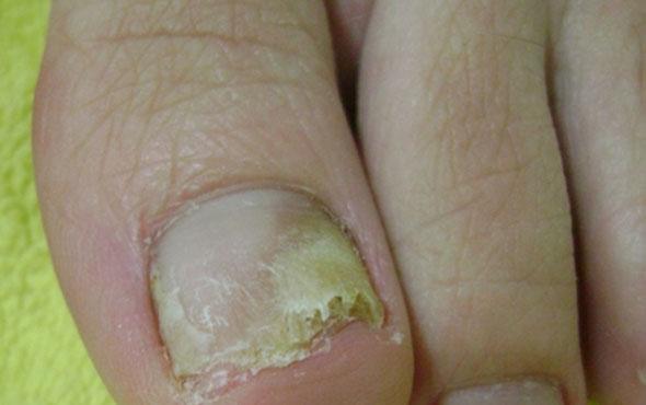 На фото: грибок ногтей на ногах