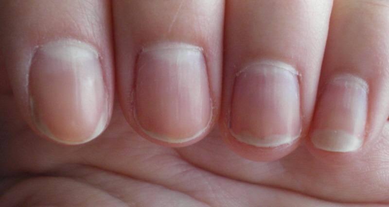 Грибок на пальце ноги лечение народными