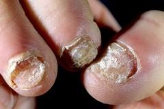 Последствия грибковой инфекции для здоровья людей