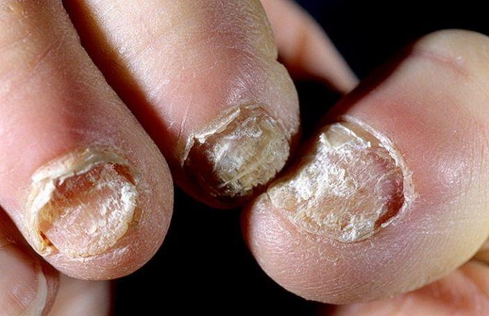 Грибок на пальце ноге лечение