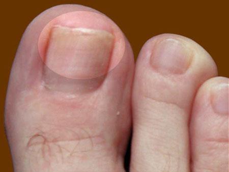 На фото: симптомы ногтевого грибка