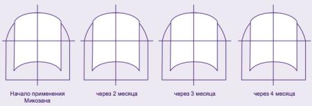 На фото: шаблон для ногтей Микозан