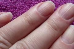 Как и чем лечить грибок ногтей во время беременности
