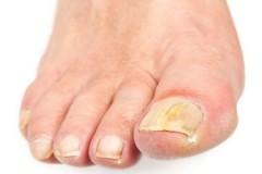 Раствор Формидрон для лечения грибка ногтей
