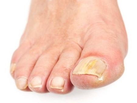 На фото: грибок ногтей