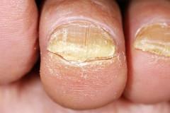 Особенности лечения онихомикоза ногтей на ногах