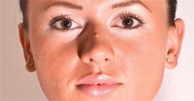 На фото: бородавки на носу