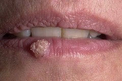 Что нужно знать об удалении бородавок во рту