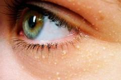 Почему появляются жировики под глазами и как их лечить