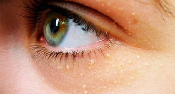 На фото: Жировики под глазами