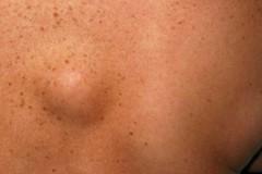 Симптомы и лечение липом на теле