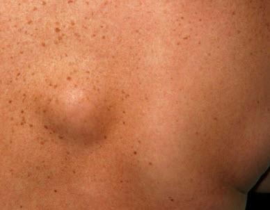 На фото: Жировик на теле