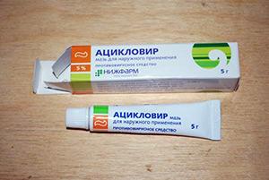 На фото: Ацикловир от бородавок