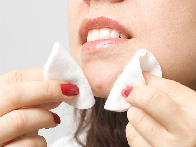 Комедоны вокруг губ
