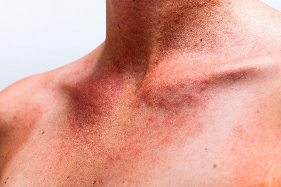 На фото: формы мастоцитоза
