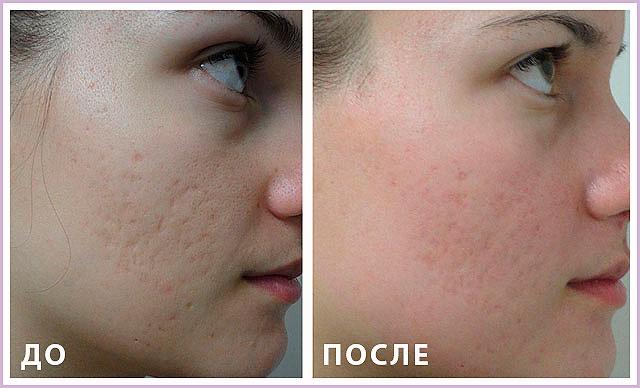 На фото: До и после лазерной шлифовки лица