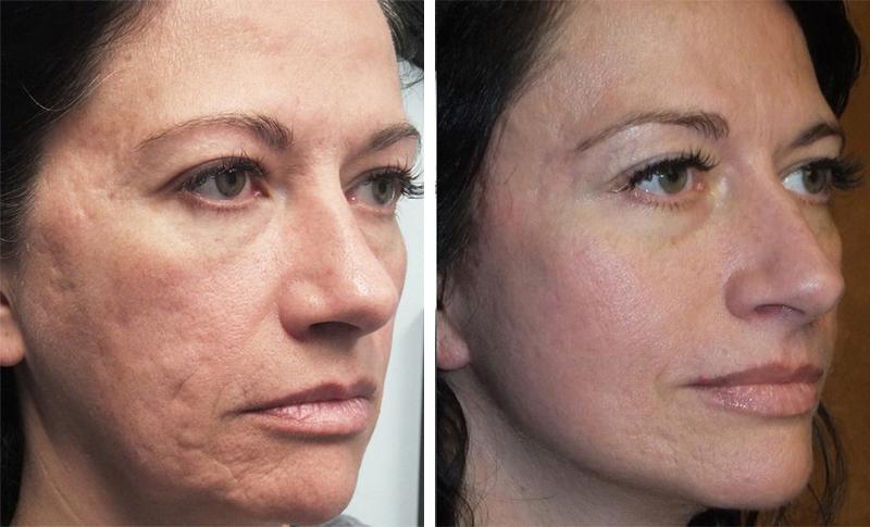 На фото: До и после лазерной шлифовки лица 2