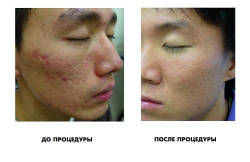 На фото: До и после лазерной шлифовки лица 3
